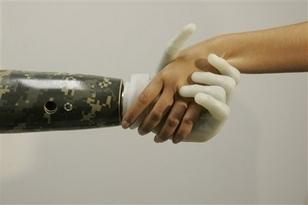 Iraqi_bionic_arm_2